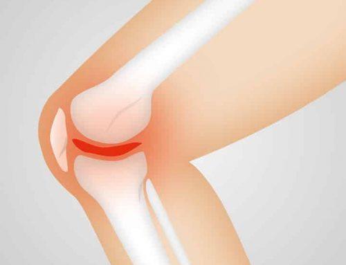5 Tips To Help Prevent Osteoarthritis